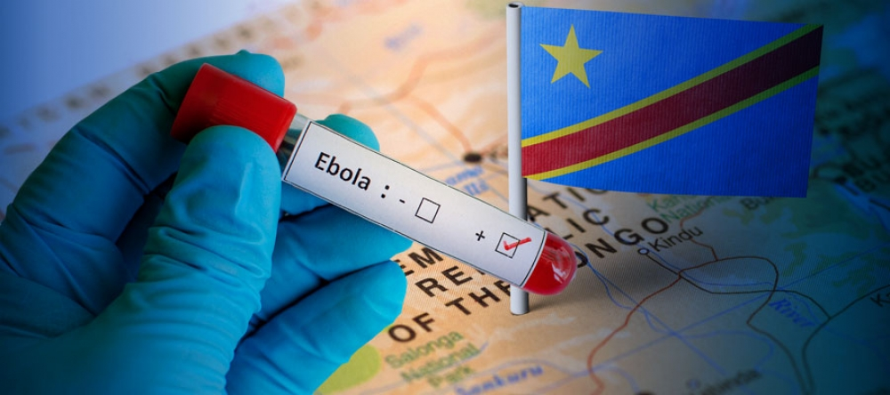 - Ebola epidemiyası ilə bağlı