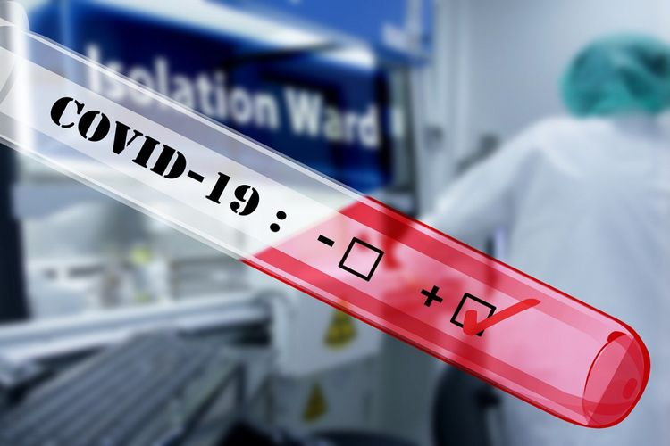İtaliyada son sutkada daha 756 nəfər koronavirusdan ölüb -