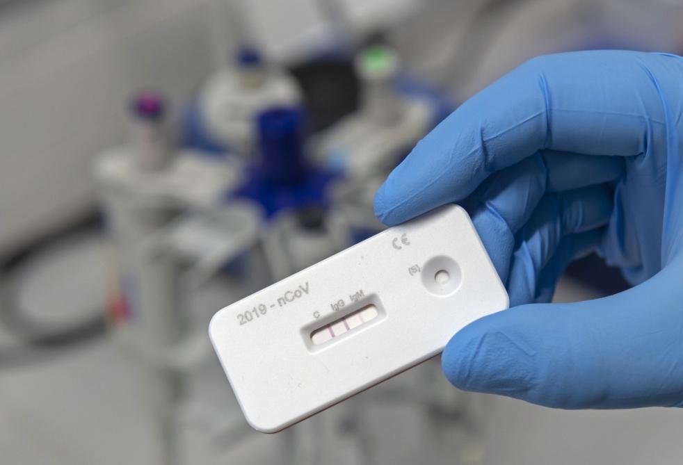 Koronavirusu üç dəqiqədə aşkarlayan test hazırlandı