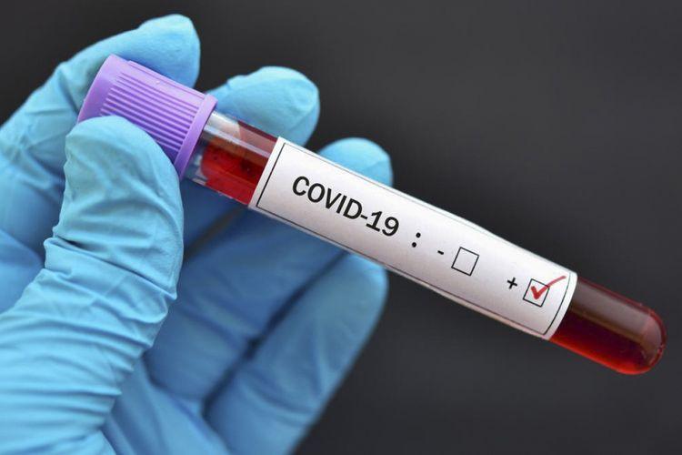 Azərbaycanda son sutkada 125 nəfər koronavirusa yoluxub –
